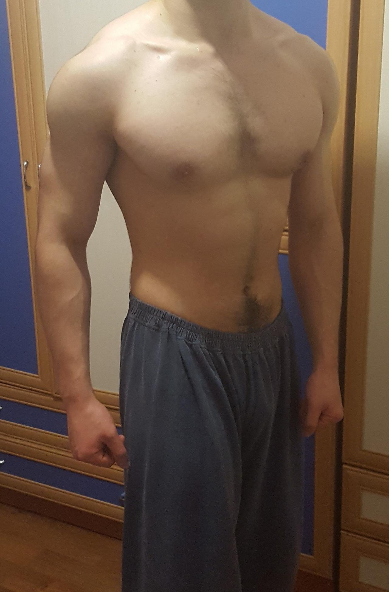 steroid kuru